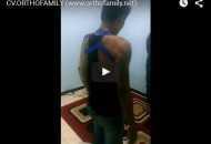 031 orthofamily.net - video01 - tangan palsu